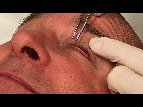 enterobius vermicularis zdravljenje)