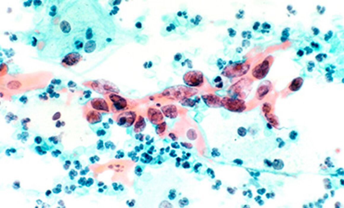 human papilloma virus ugeskrift for l ger)