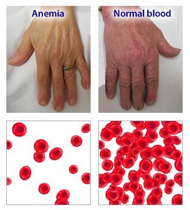 anemie simptome