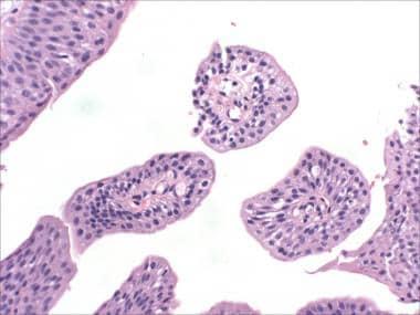 Papilloma urinary bladder histopathology,, Papilloma on bladder