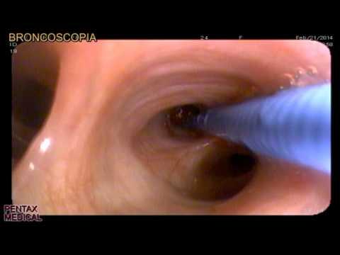 que es cancer bronquial condilomul torsunov