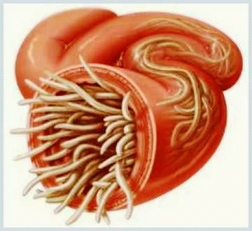 simptomele paraziților corpului uman ca tratament