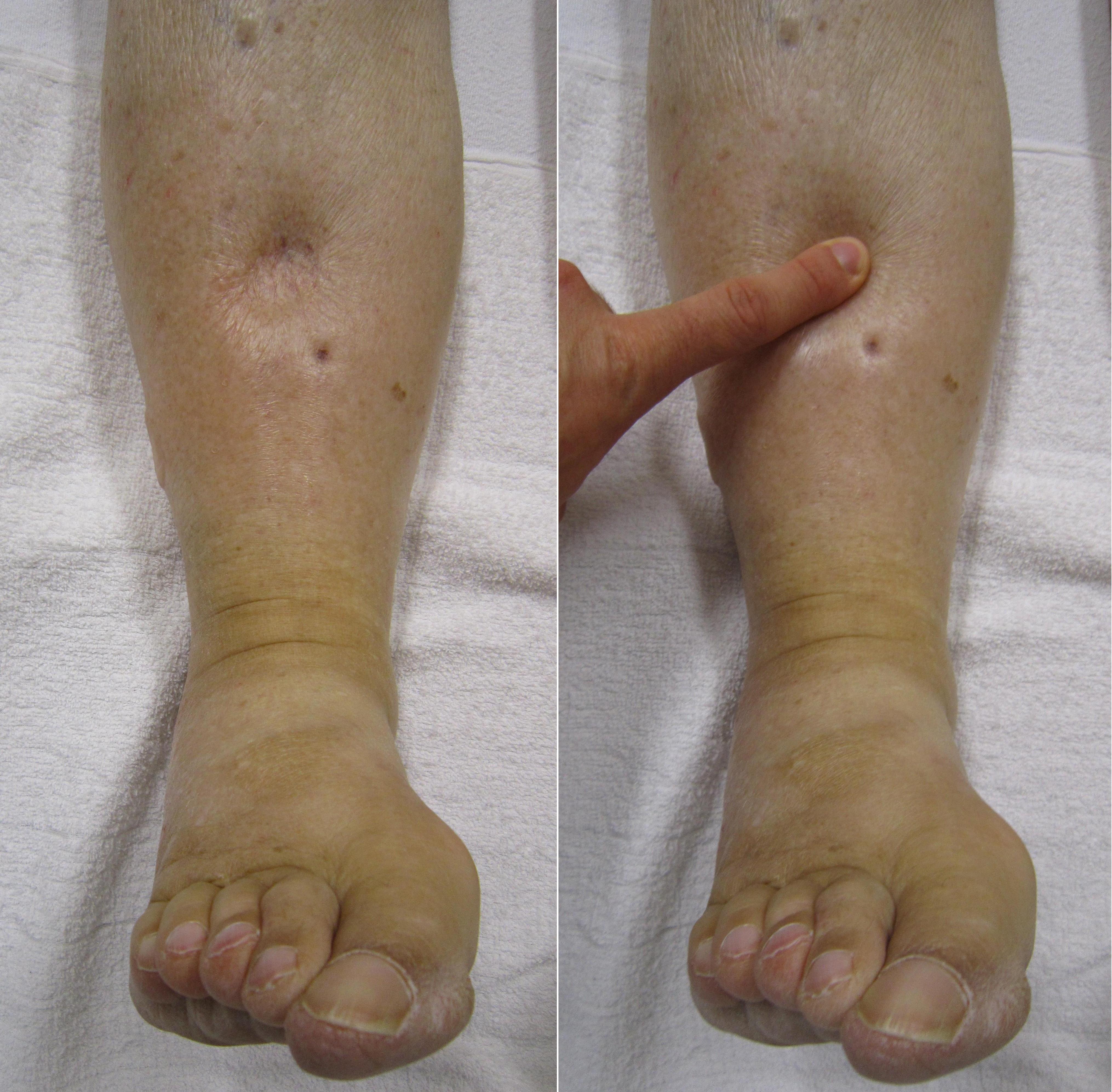 papilloma right thigh icd 10