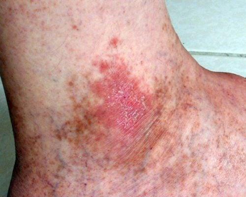 cancerul de piele manifestari)