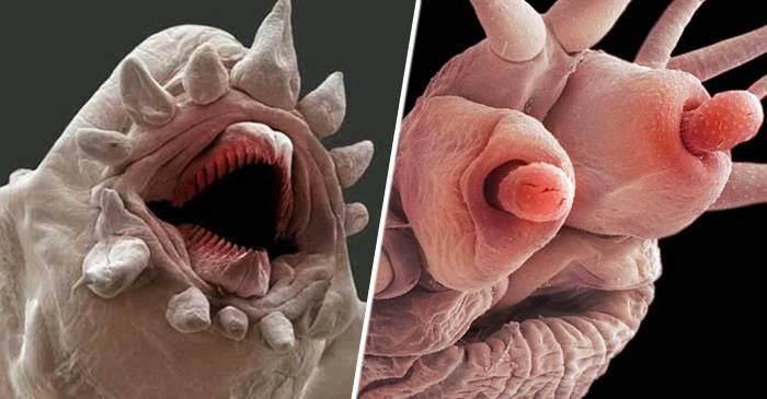 imagini cu paraziți ai pielii umane