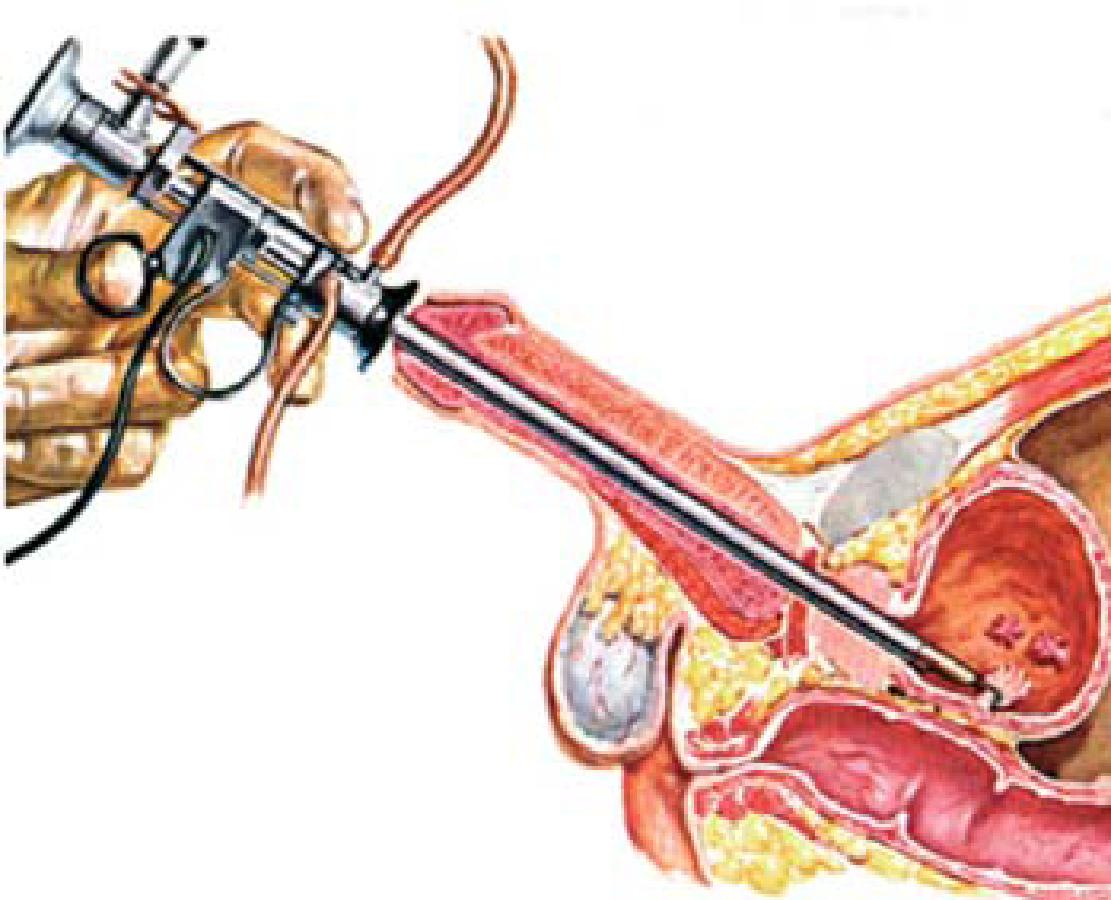 Che cos e il papilloma alla vescica - Benign cancer and malignant tumor