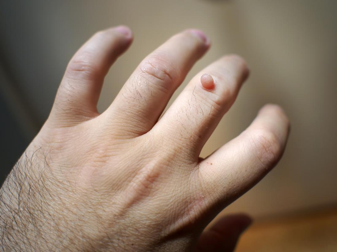 Warts on skin during pregnancy