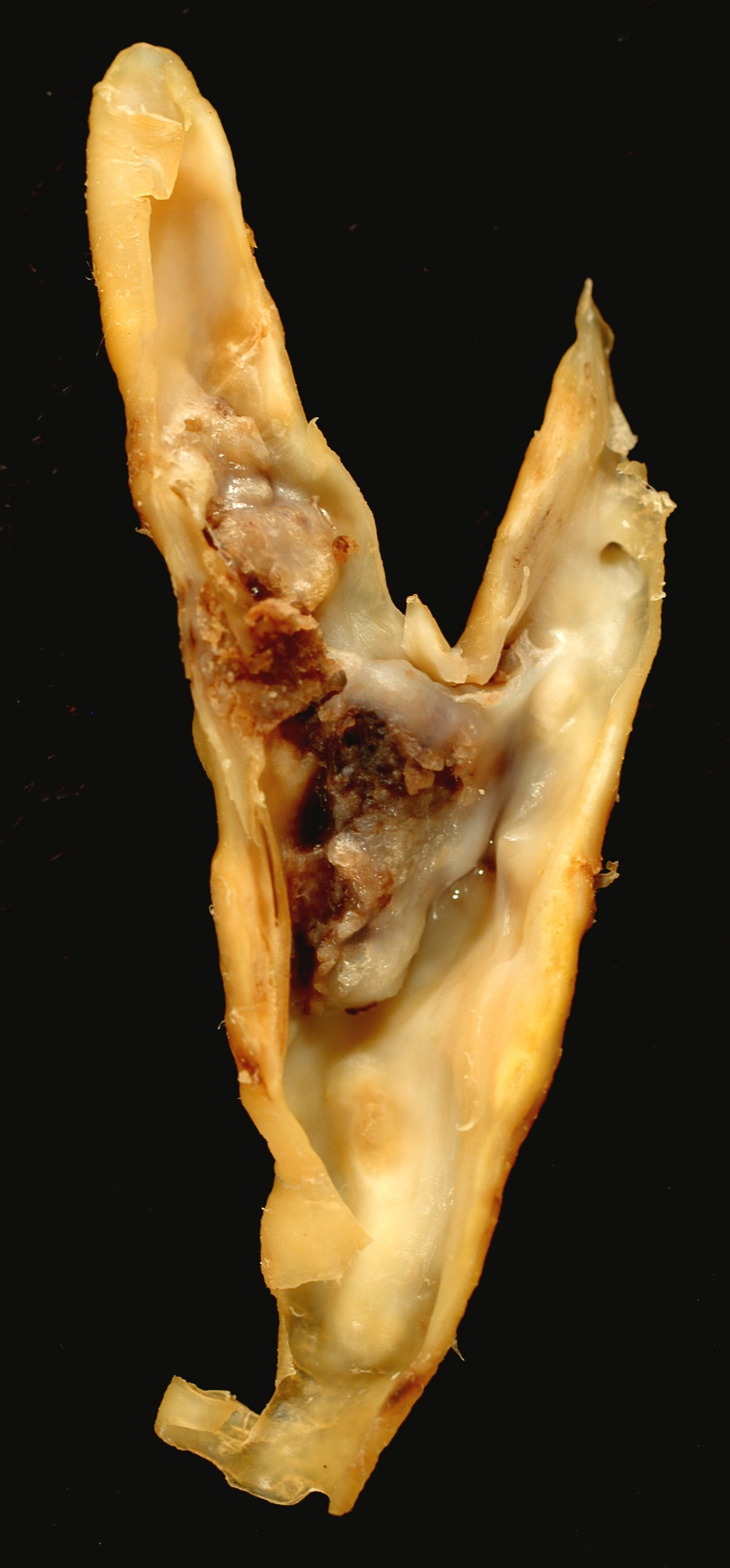 Tricocefaloza - Triocefalele sunt o geohelmint