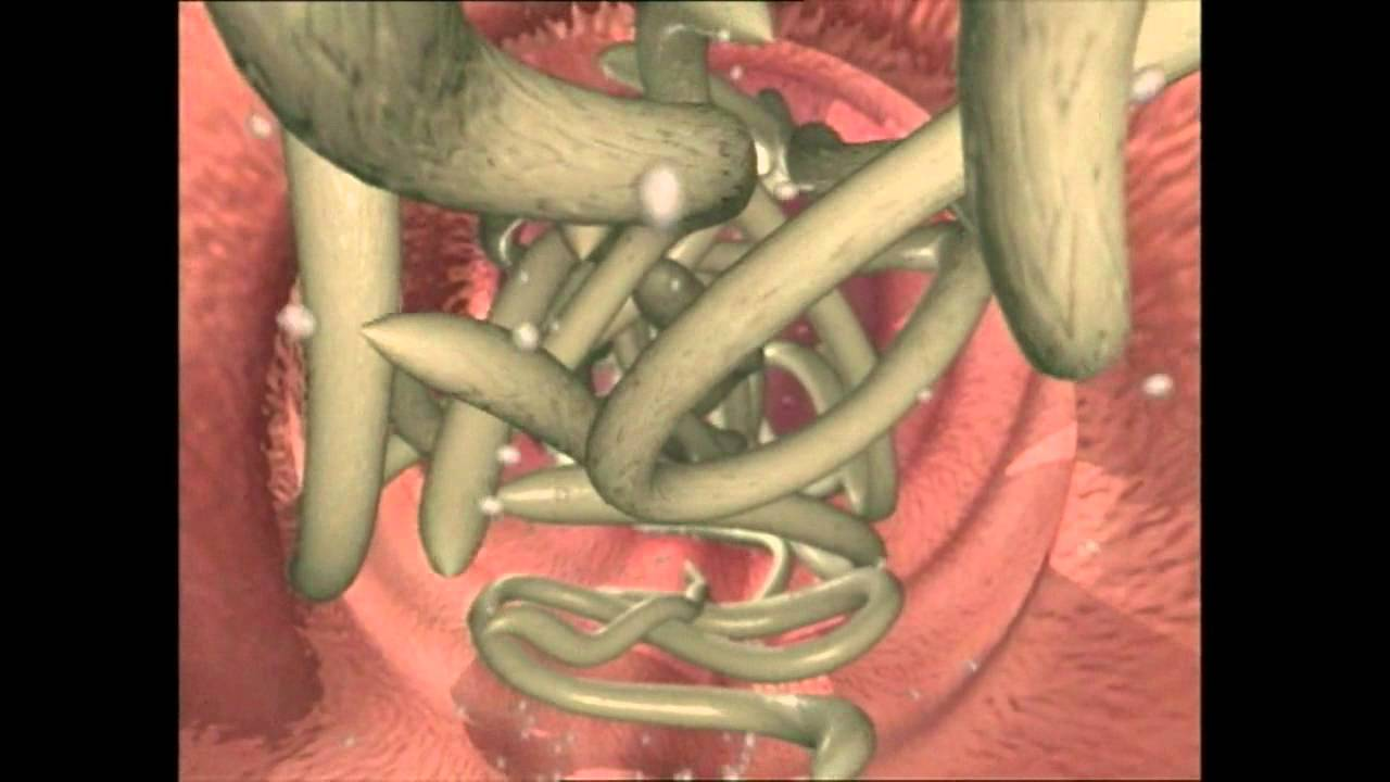 does hpv cause esophageal cancer