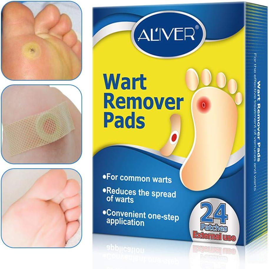 wart treatment feet)
