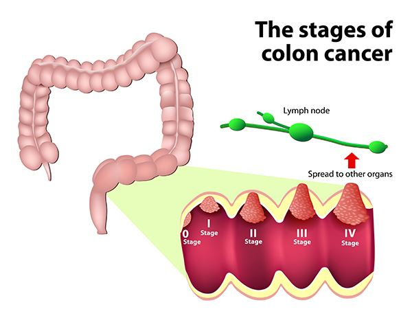 cancer colon t4