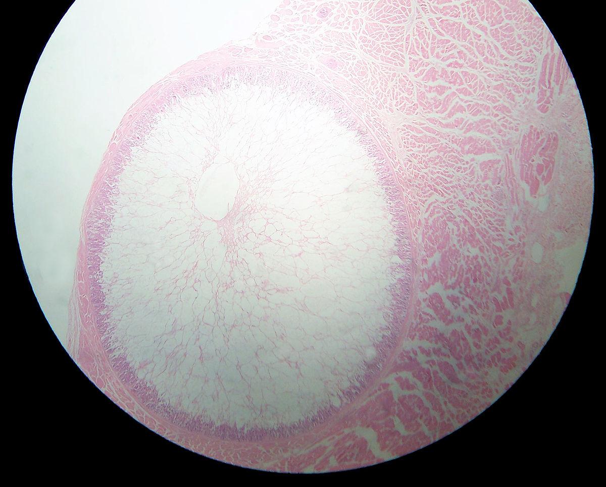 papilloma virus nhs condiloame la bărbați din ce