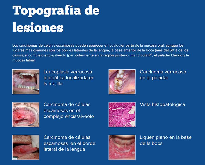 papilomatoza laringiana cum sa tratezi)