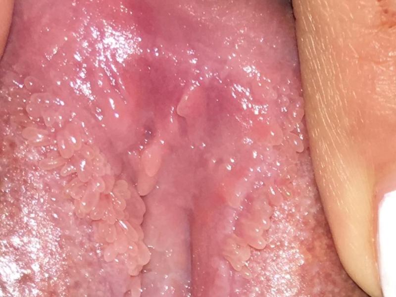 squamous vestibular papillomatosis