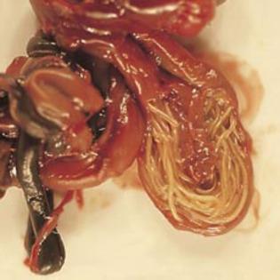 simptomele viermilor lamblia la copii)