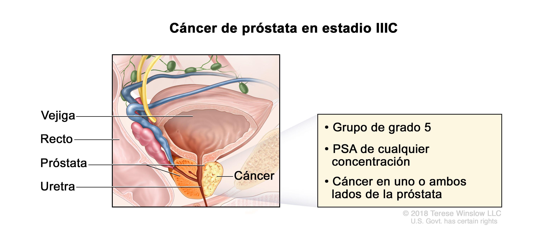 cancer recidiva prostata)