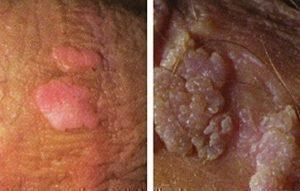 human papillomavirus infection genital