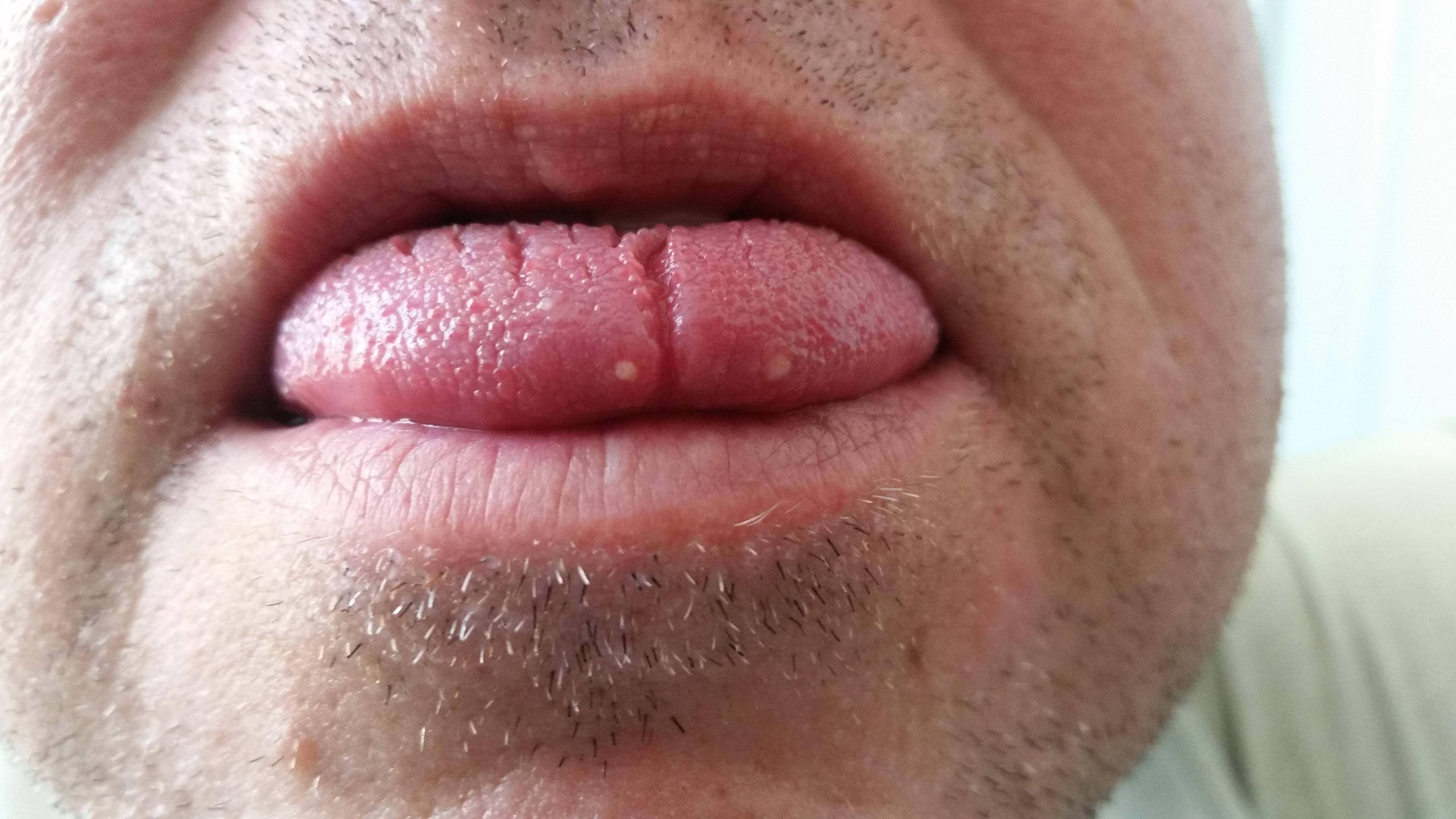 negi pe limba