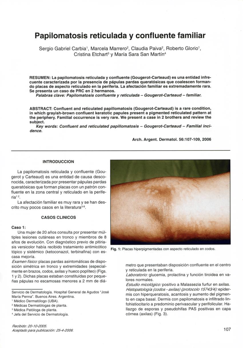 Virus papiloma en la boca imagenes Tratamiento de papilomatosis reticulada y confluente