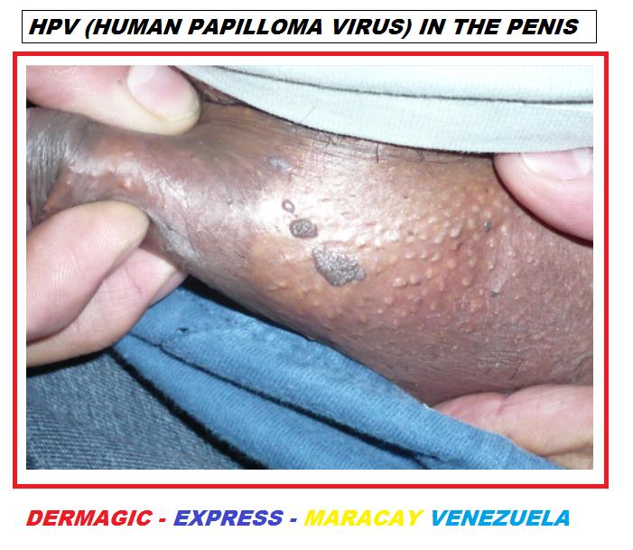 Condiloame genitale: cauzele și tratamente
