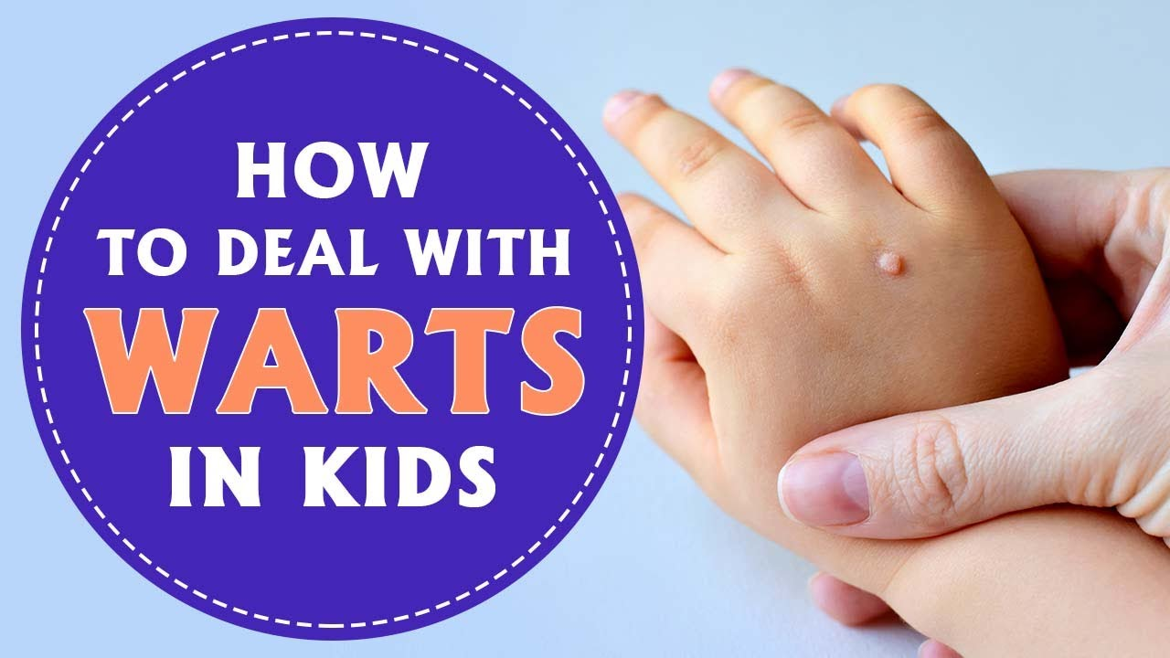 warts on children s hands and feet