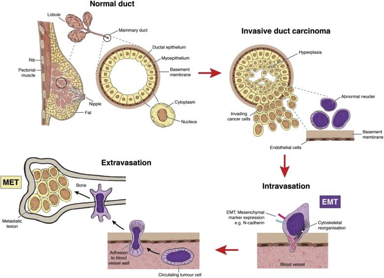 cancer benign cells)