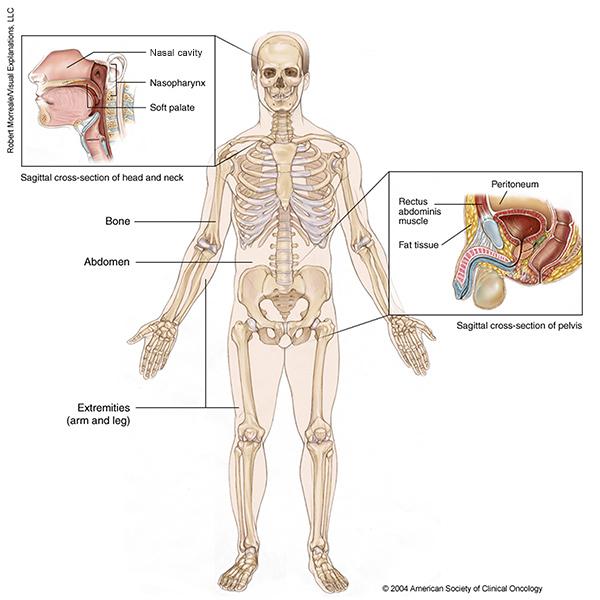 sarcoma cancer cause)