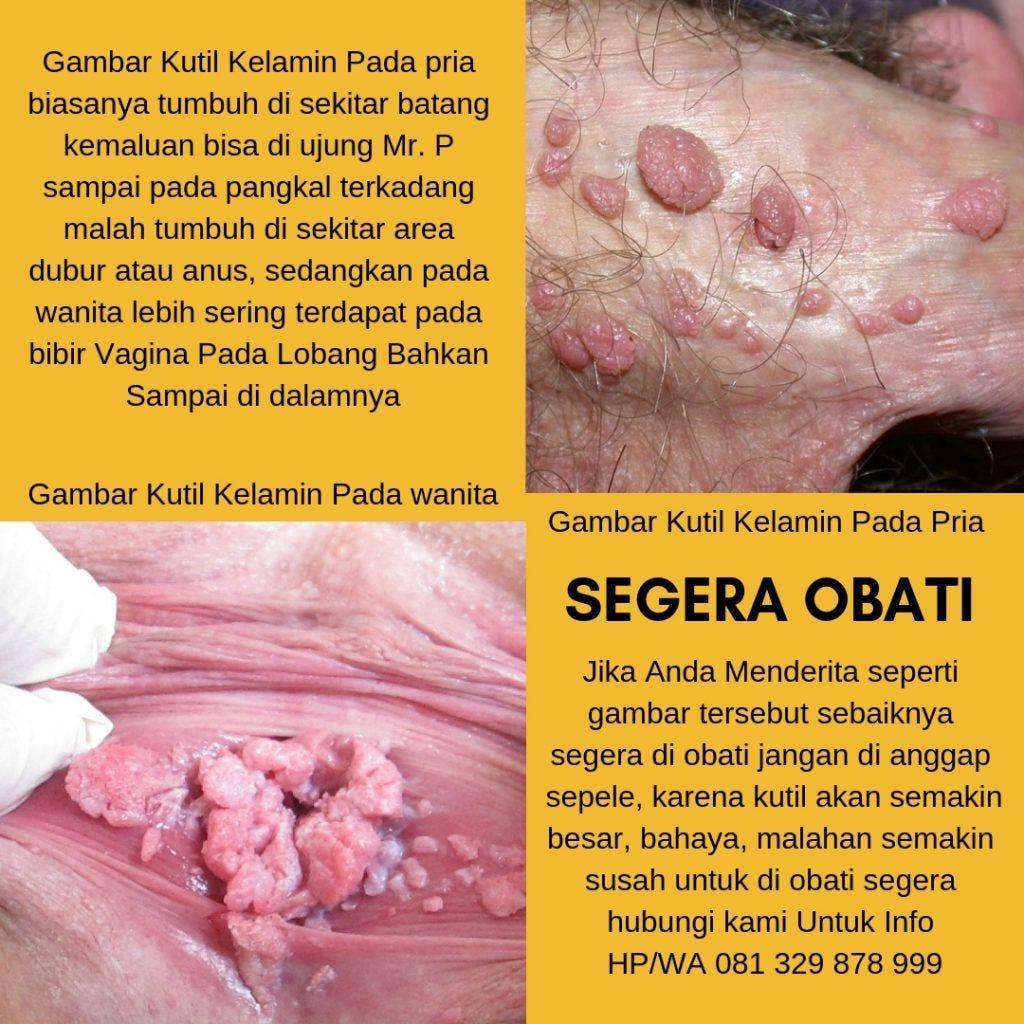 tratarea papiloma virus