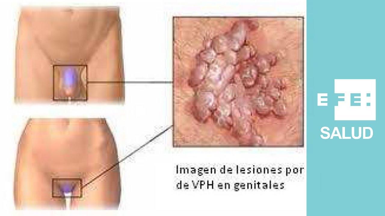 hpv vaccine nhs wales detoxifiere shelton