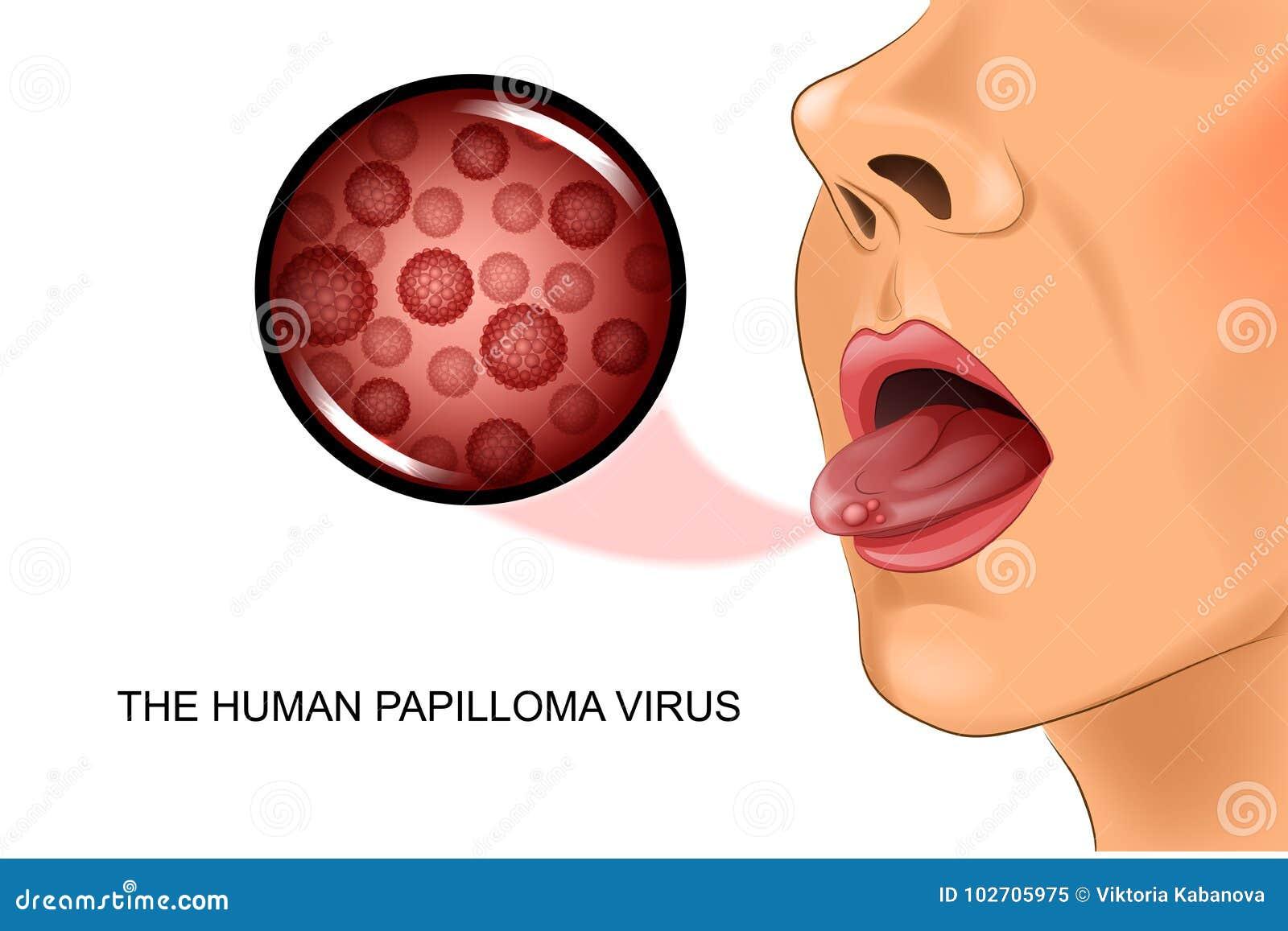 papilloma virus langue