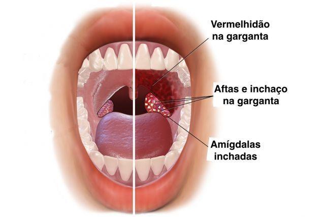 hpv cancer na garganta)