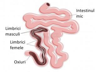 types des anemies situs parazit teniosis