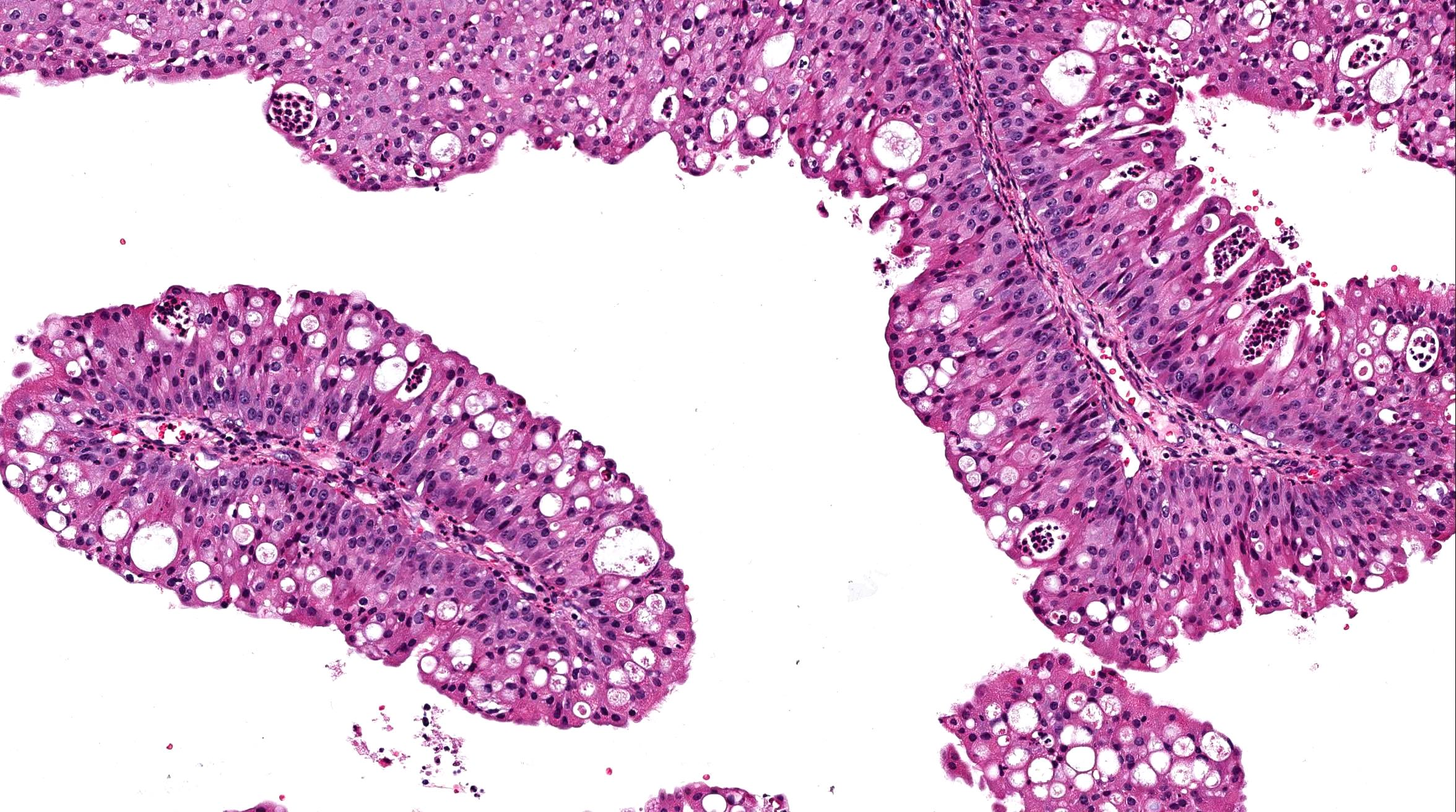nasal inverted papilloma histology