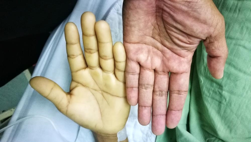 anemie tratament rapid)