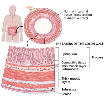 cancer colon t4)