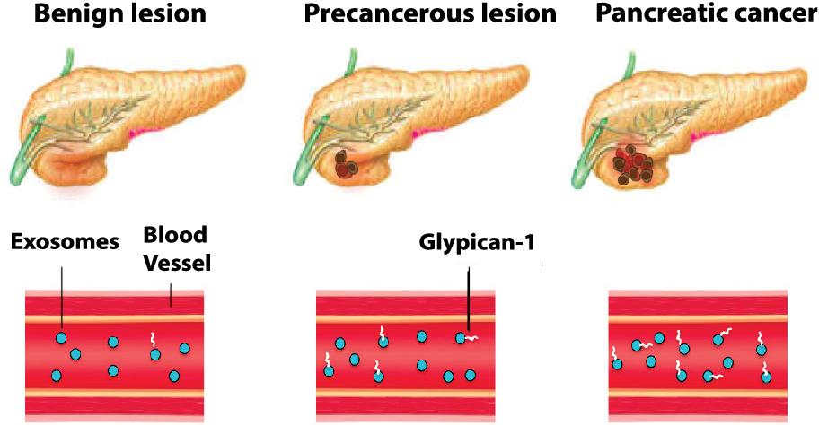 anticorpi și helminți lamblia)