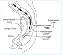 cancer ganglion abdominal