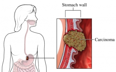 gastric cancer kills