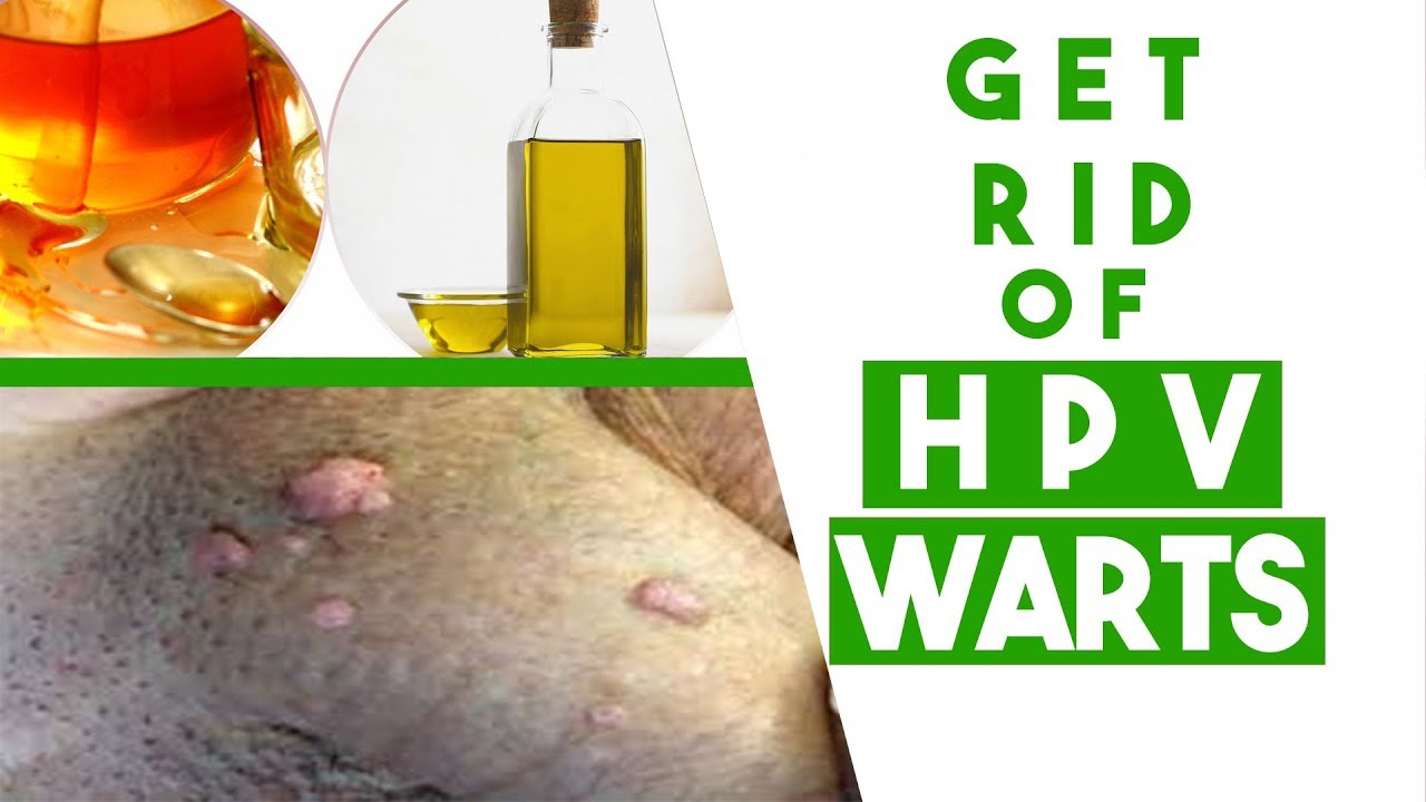 hpv warts get rid of)