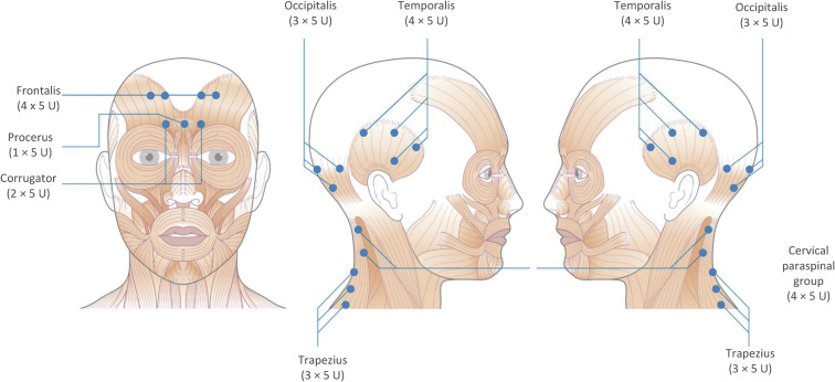 botuline toxine migraine)