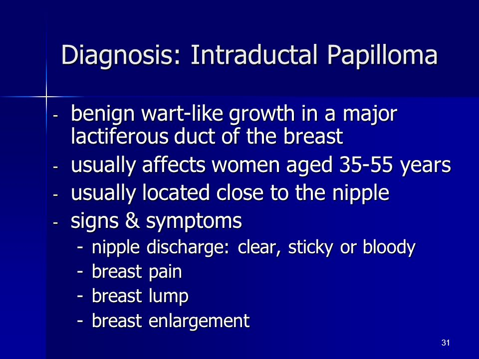 intraductal papilloma signs