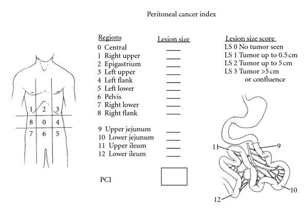 peritoneal cancer index)