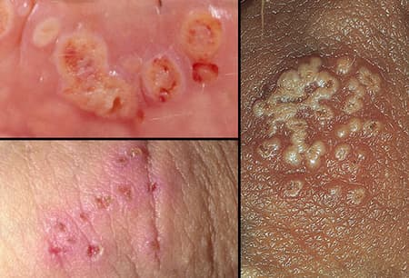 hpv causes sores