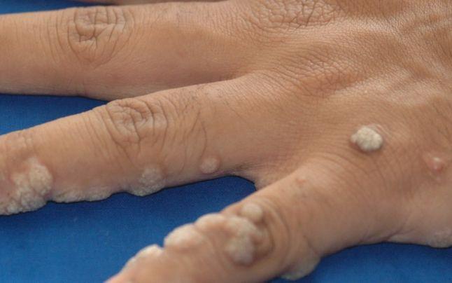 papiloame pe corpul bărbaților acai berry detox u0026 curățare eficientă a colonului