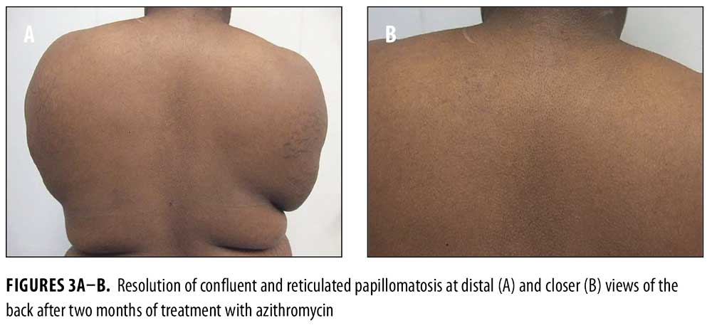 confluent and reticulated papillomatosis treatment minocycline