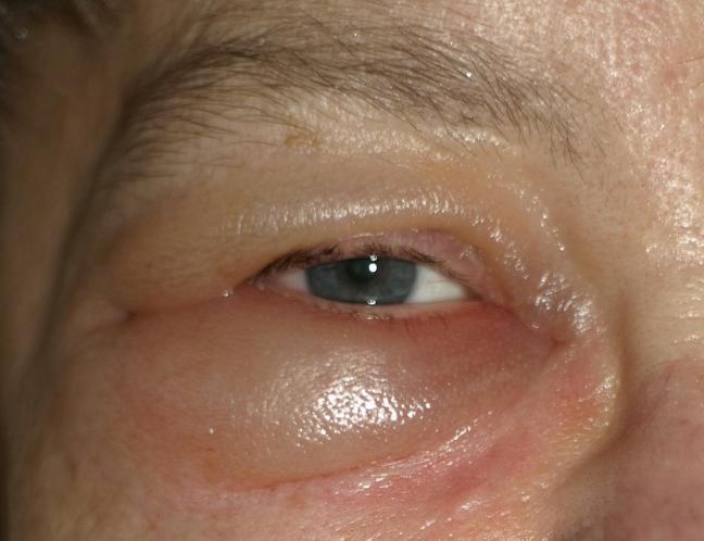 papilloma interno occhio