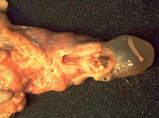 tenioza hidatigenă la om)