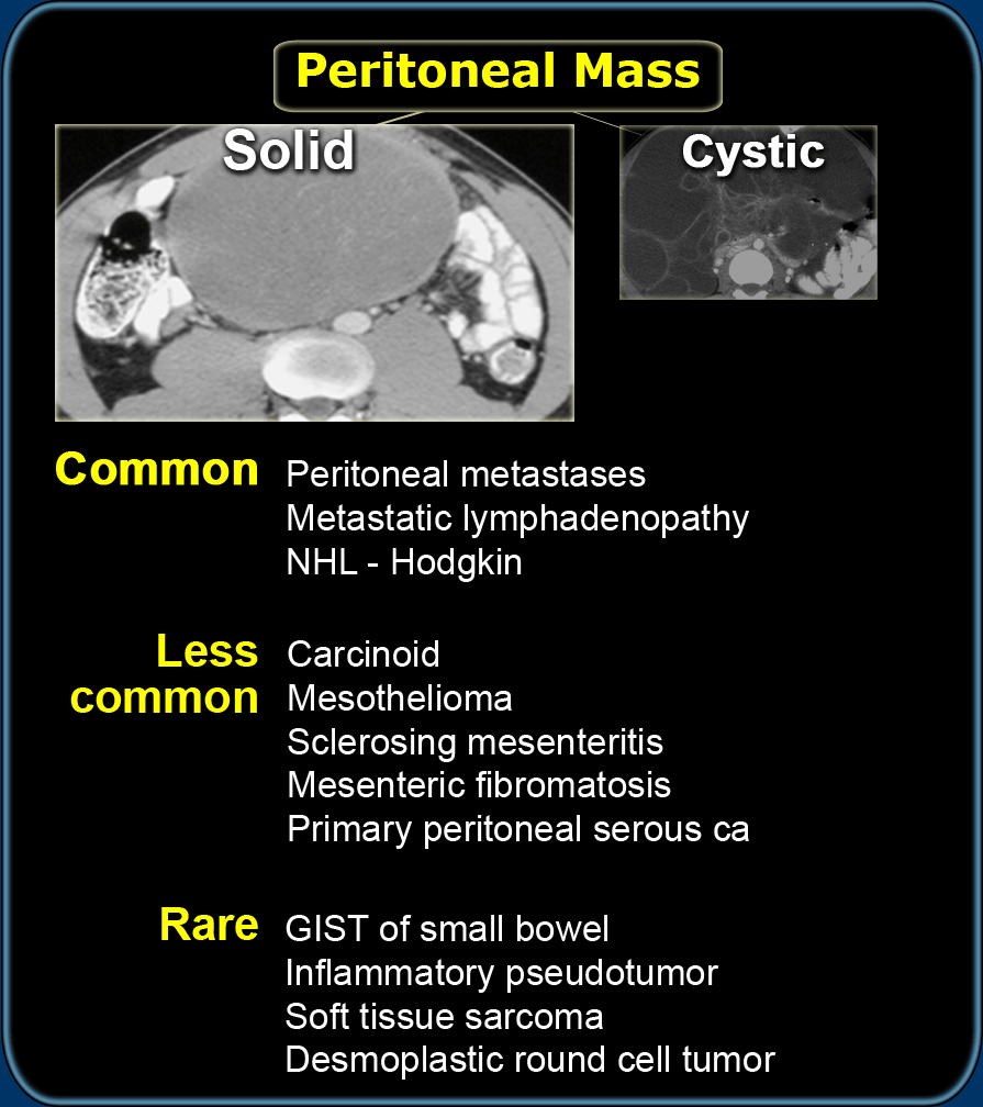 cancer in peritoneal wall