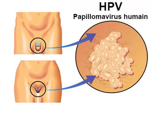 papillomavirus bouton