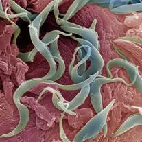 hewan nemathelminthes adalah viermi în pastile pentru adulți